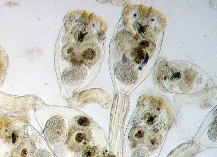 Conochilus sp.