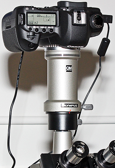 Canon EOS 5D Mark II on an Olympus BH compound microscope