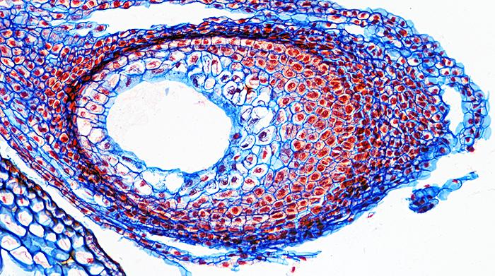 Daffodil ovary