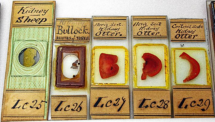 Slides of liver