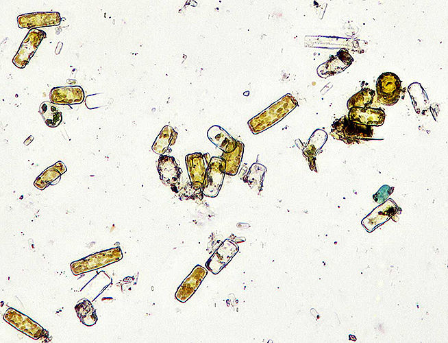 Diatoms from brown slime