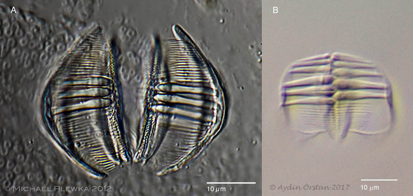 Trophi of Dissotrocha macrostyla and Abrochtha cf. sonneborni