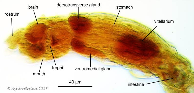 Abrochtha cf. sonneborni lateral view