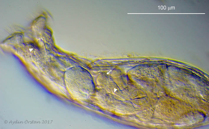 Rotaria rotatoria with embryo