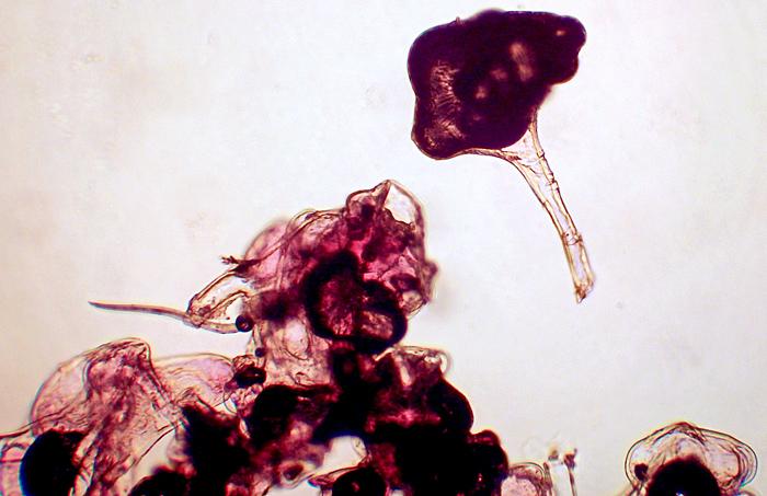 Birch erineum gall