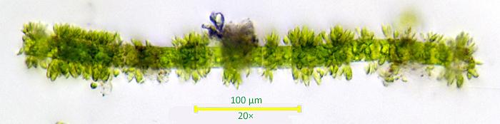 Epiphytes on filamentous alga