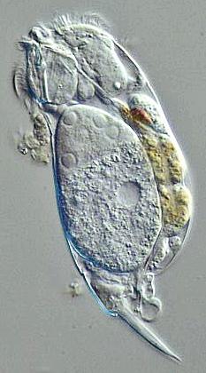 Rotifer (Euchlanis sp.)