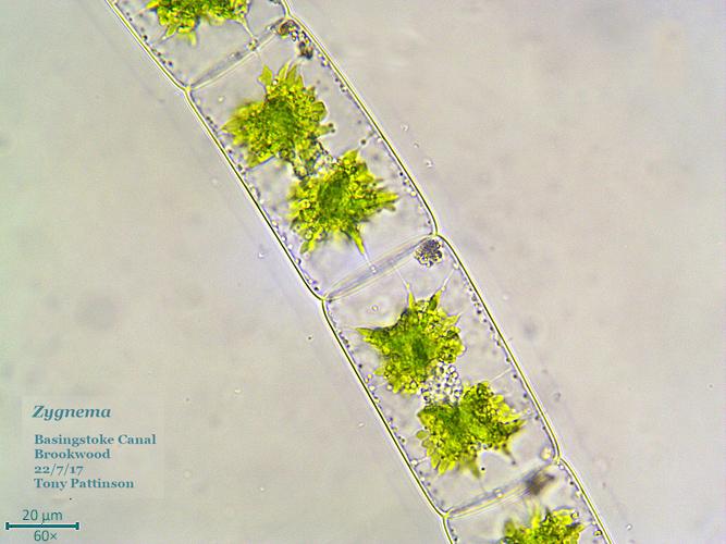 Filamentous alga (Zygnema sp.) bright field