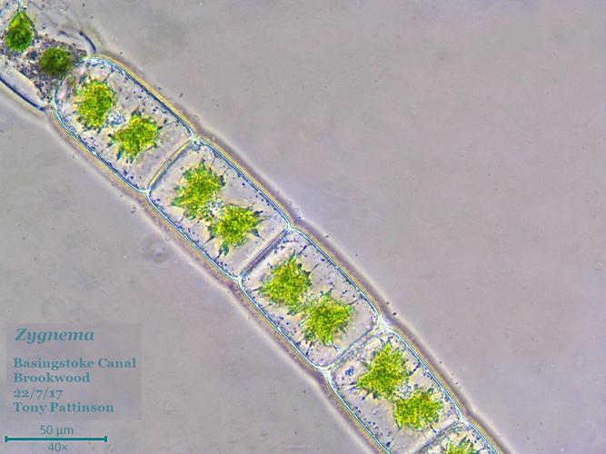 Filamentous alga (Zygnema sp.) phase contrast