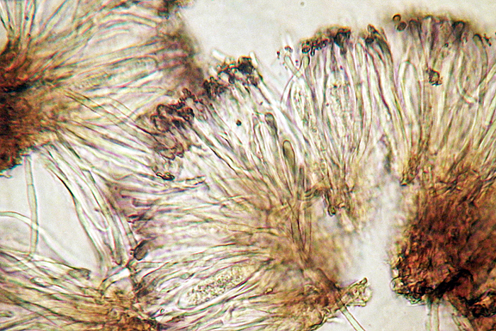 Toninia sedifolia asci and ascospores