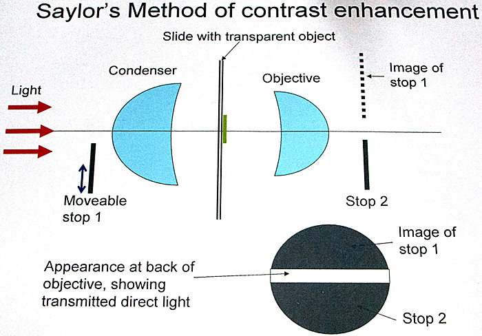 Saylor's method of contrast enhancement