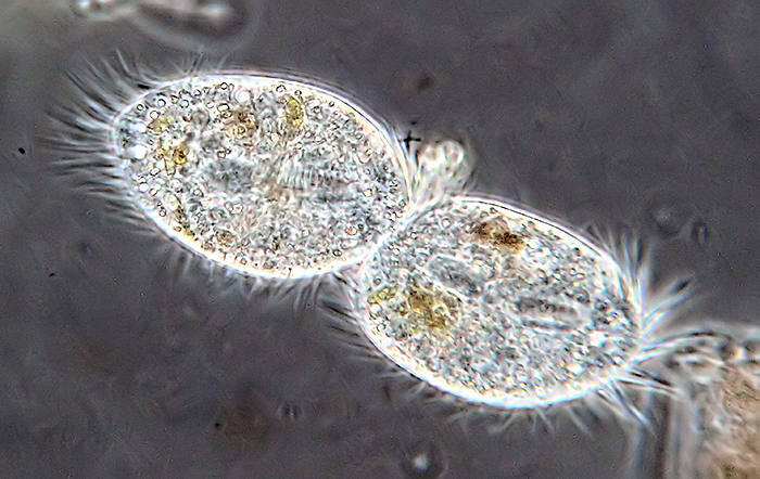 Ciliate image background de-speckled, image sharpened