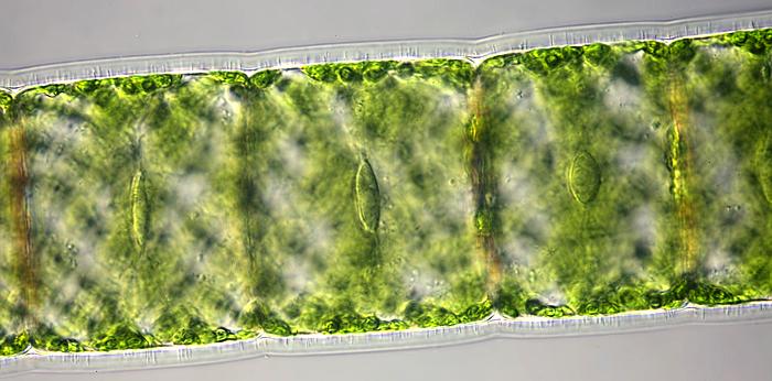 Spirogyra nuclei