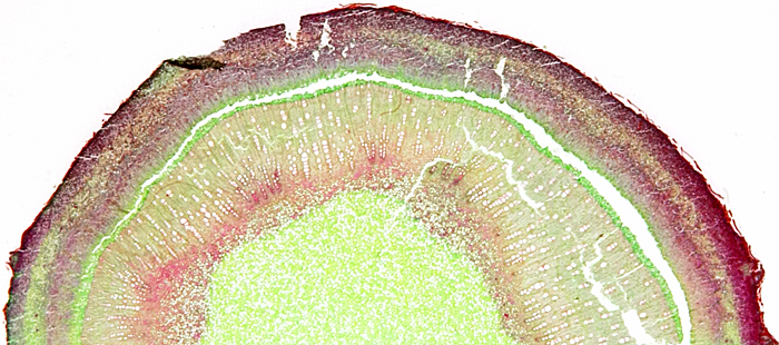 Fig stem