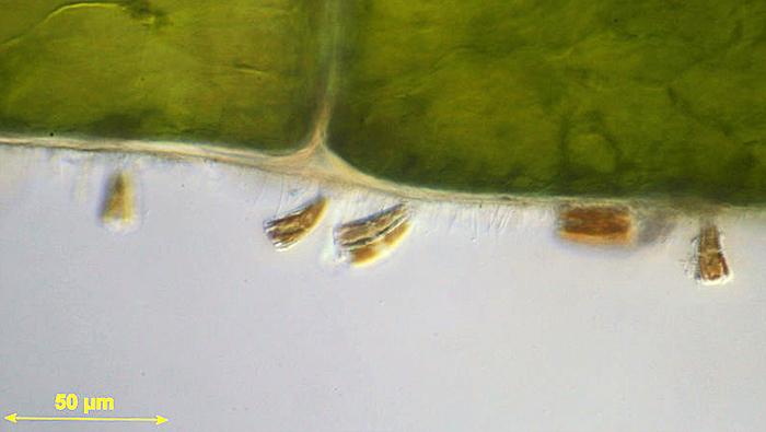 Epiphytic diatoms
