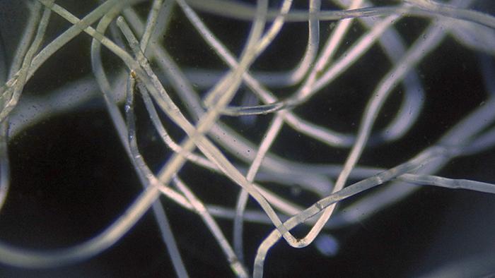 Mystery fibres