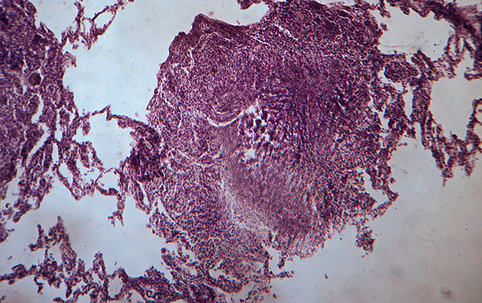 Cat-PU lung tubercle