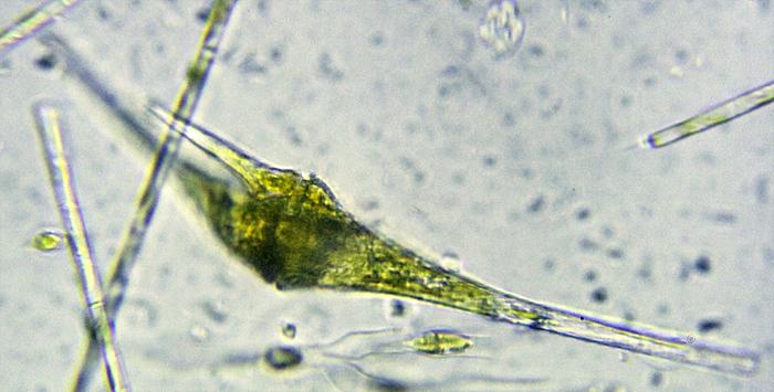 Ceratium sp.