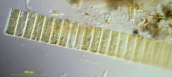 Fragilaria sp.