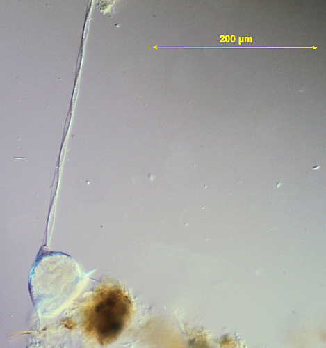 Vorticella sp.
