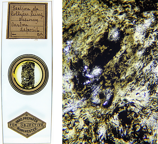 Ward slide of colliers' lung