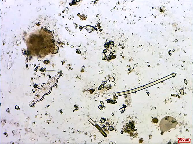 Biddulphia from Oamaru diatomite