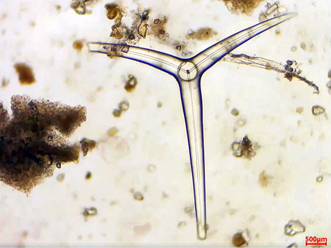 Sponge spicule from Oamaru diatomite