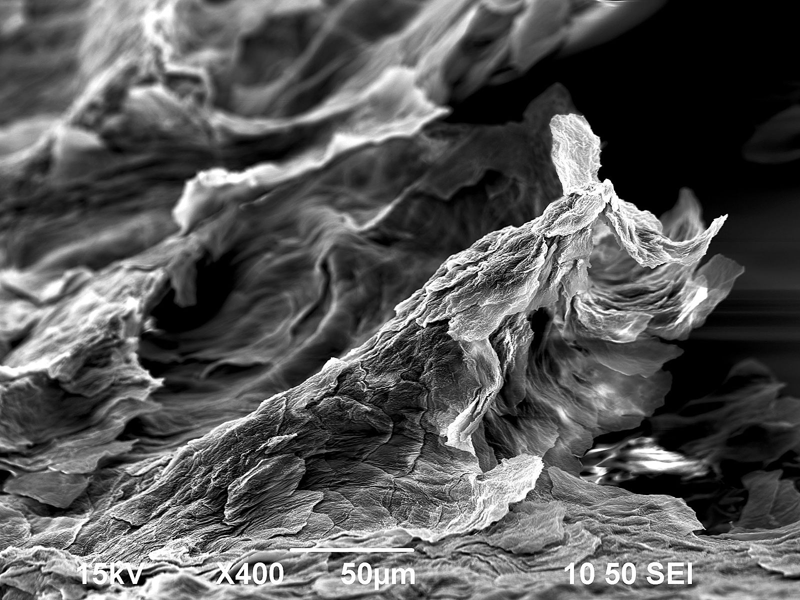 Flake of dry human skin
