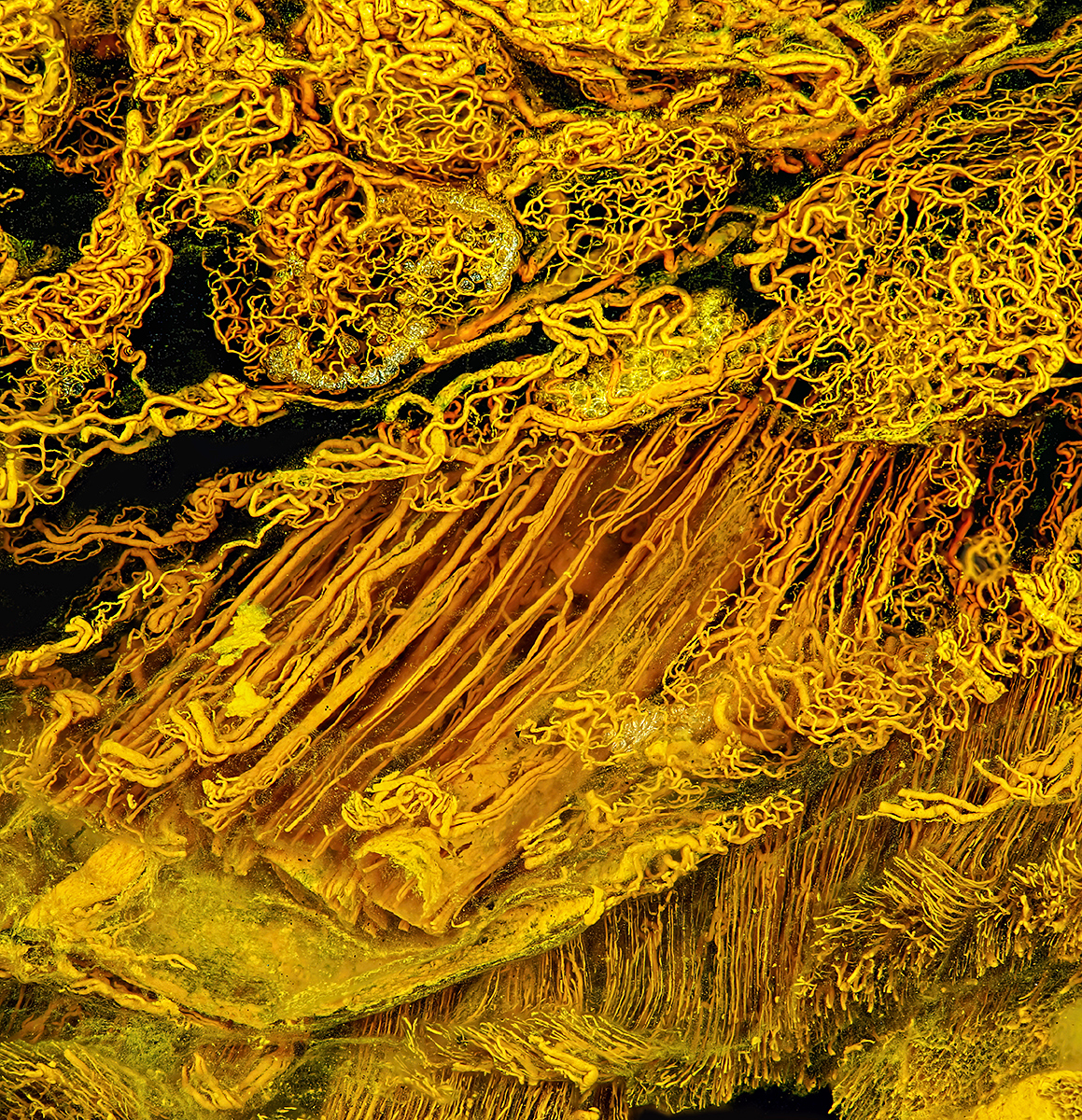 Human skin gland and muscle