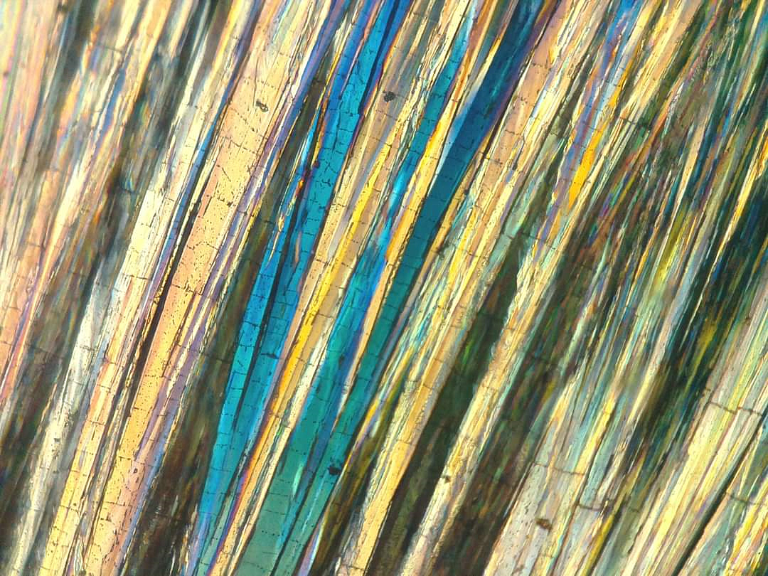 Hippuric acid crystals