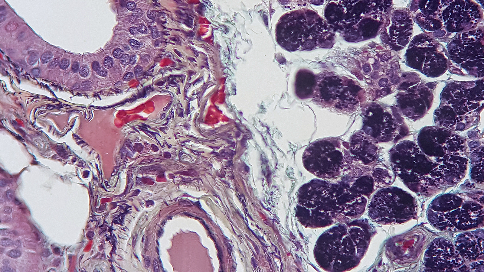 Human parotid gland