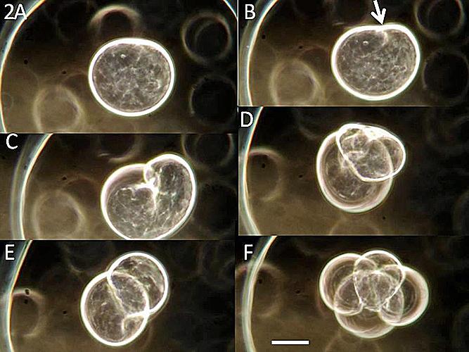 Pleurobrachia pileus egg