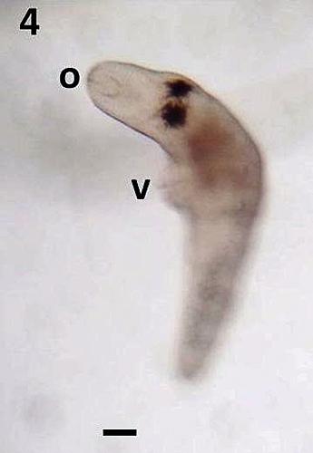 Pleurobrachia pileus parasite